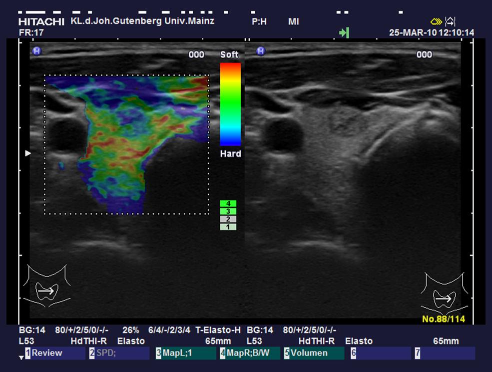 Bild eines Ultraschalls
